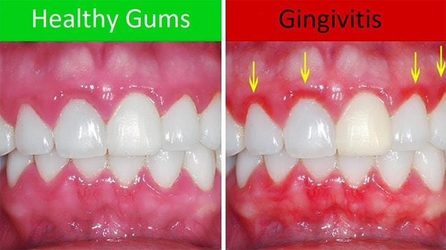 Eumundi Dental Gum Disease Fact Sheet