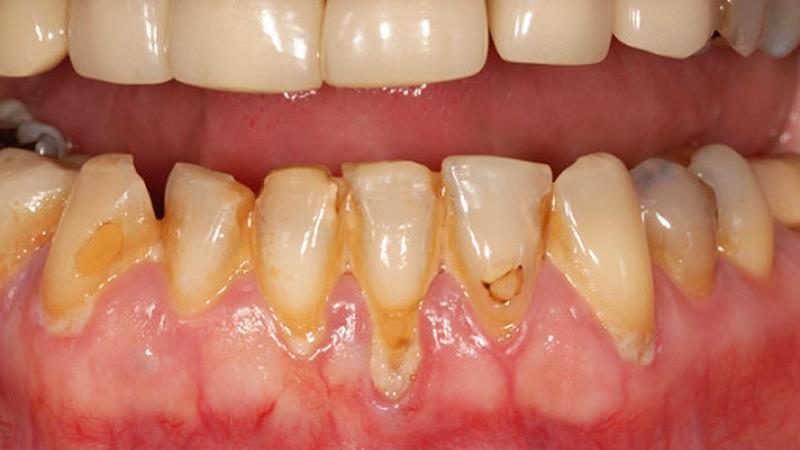 Eumundi Dental Gum Disease Fact Sheet